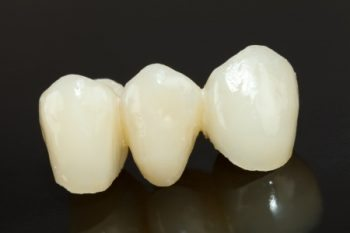 dental porcelain bridge