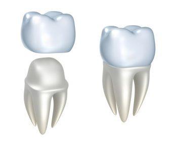 dental crowns by Romenesko Family Dentistry