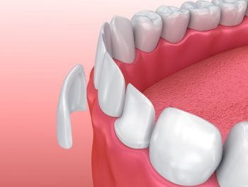 cosmetic porcelain dental veneers by Romenesko Family Dentistry